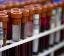 Cozumel Evaluated For A Possible Blood Bank